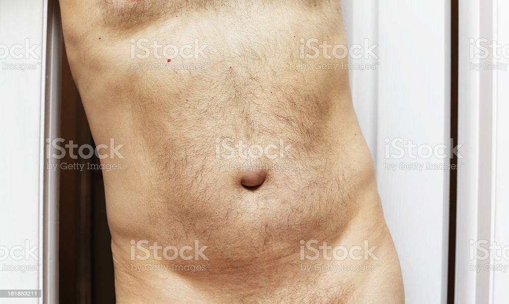 Male With Umbilical Hernia stock photo