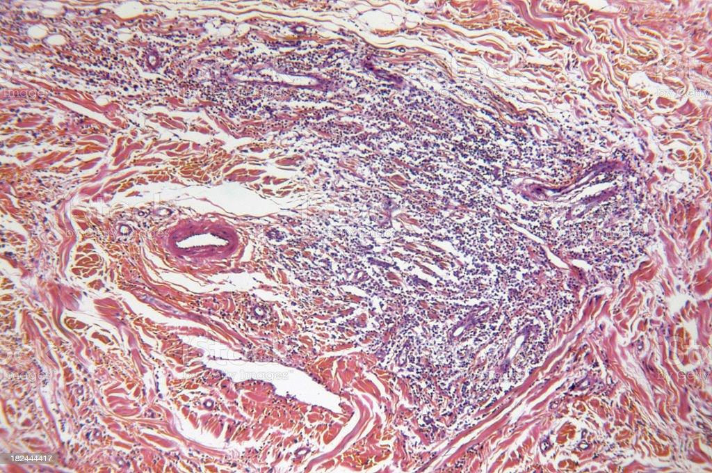 Mammary Gland Mast Cell Tumour stock photo