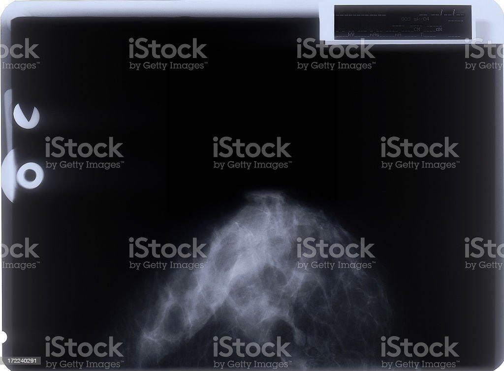 Mammogram film stock photo