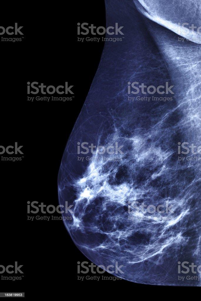 Mammogram Image stock photo
