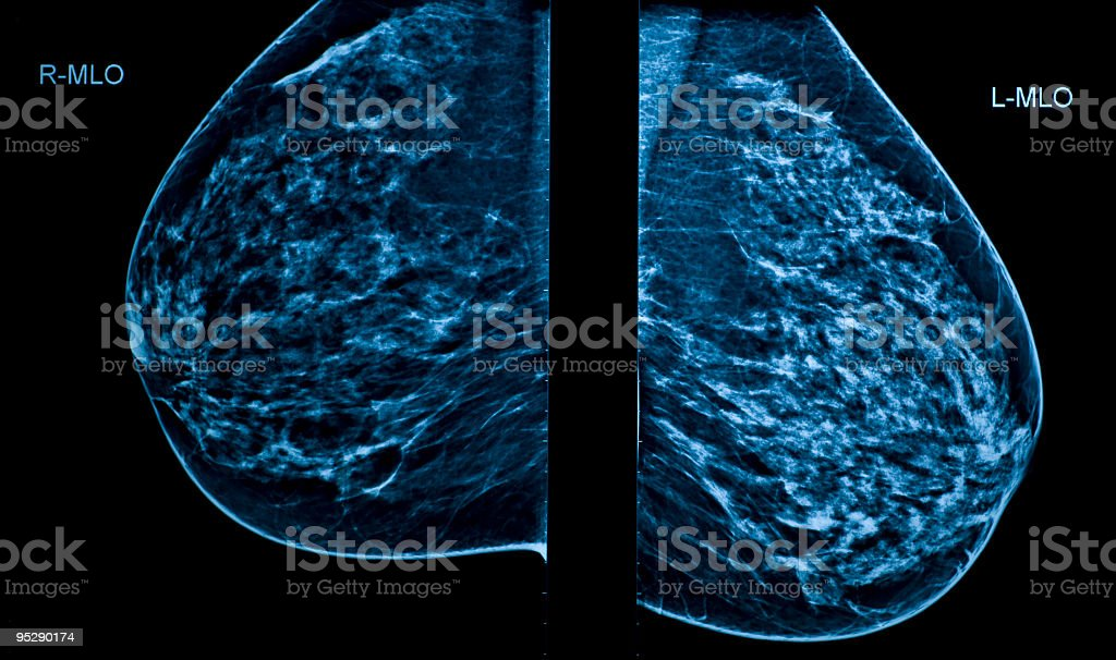 A Mammogram image showing left and right breasts stock photo
