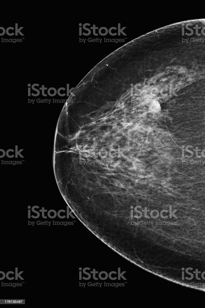 Mammogram royalty-free stock photo