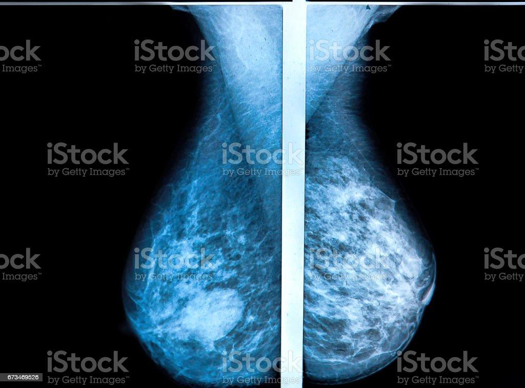 mammography breast stock photo