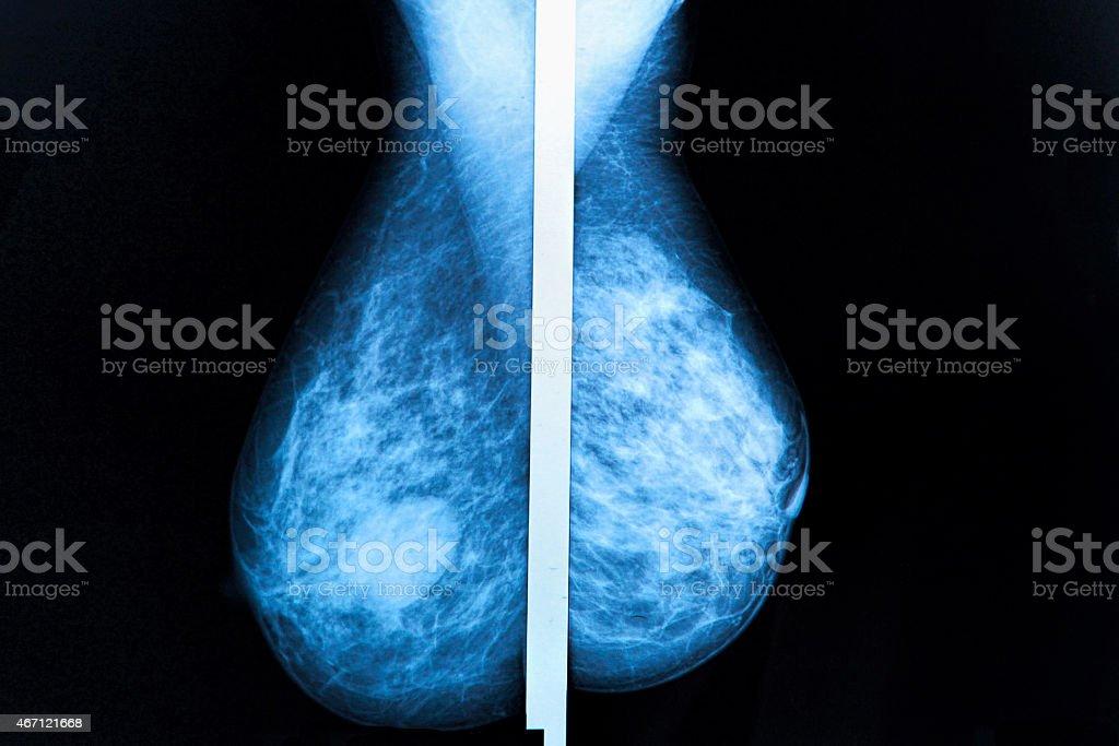 mammography stock photo