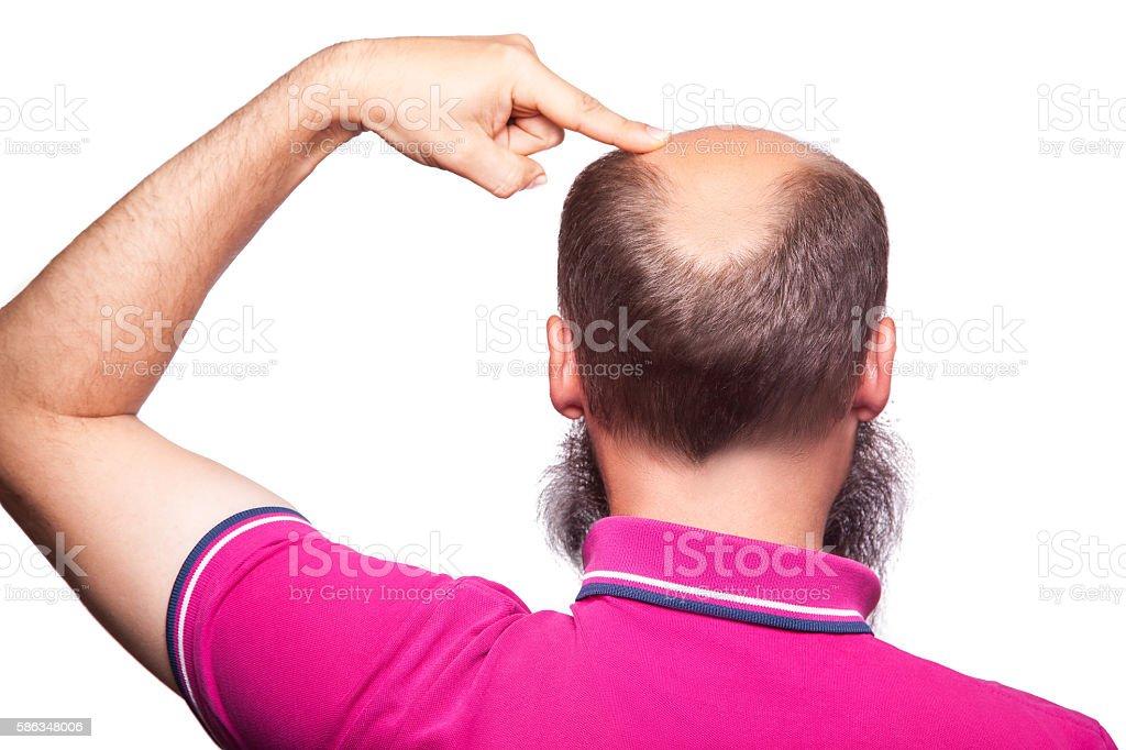 man alopecia baldness hair loss isolated. stock photo