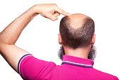 man alopecia baldness hair loss isolated.