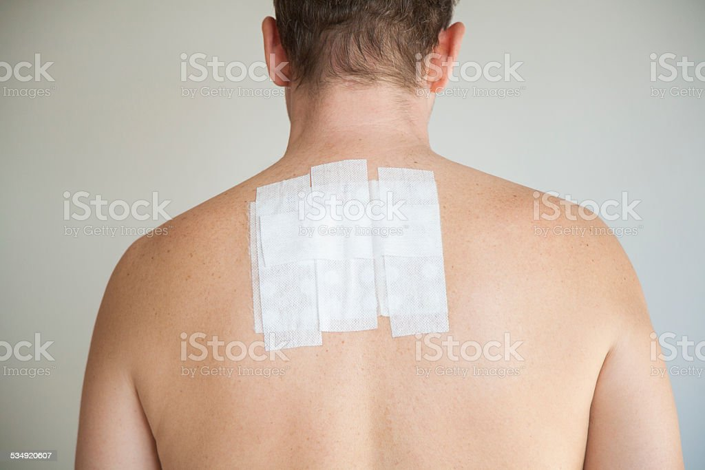 man back with allergy test stock photo
