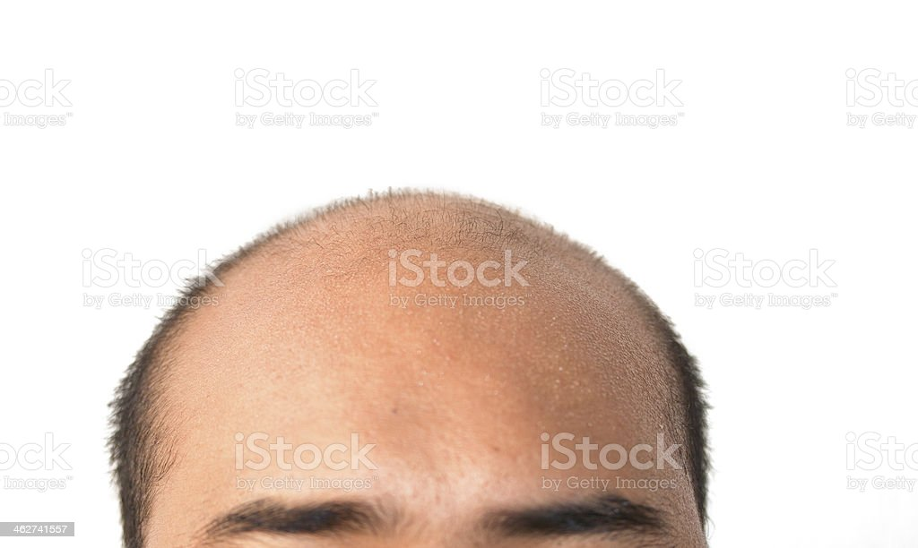 man bald head on white with clipping path stock photo