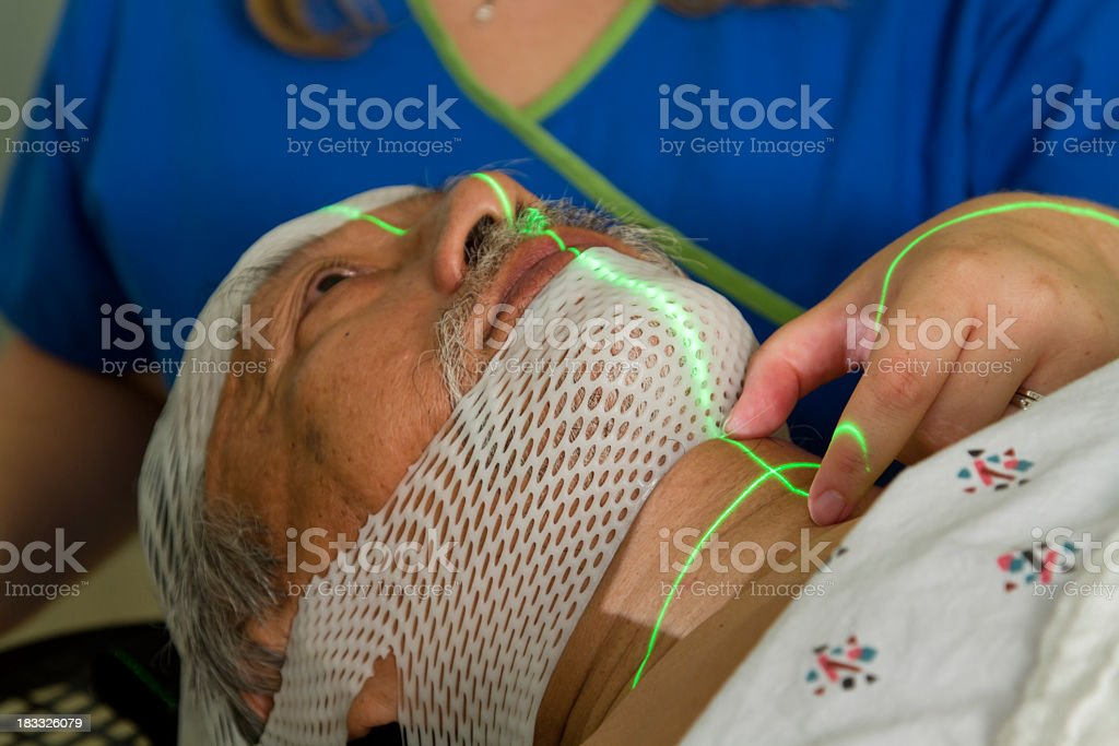 Man Being Set-up for Head and Neck Radiotherapy royalty-free stock photo