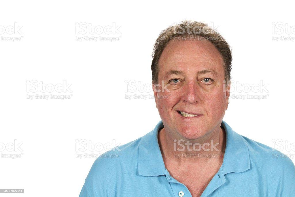 Man Bell's Palsy stock photo