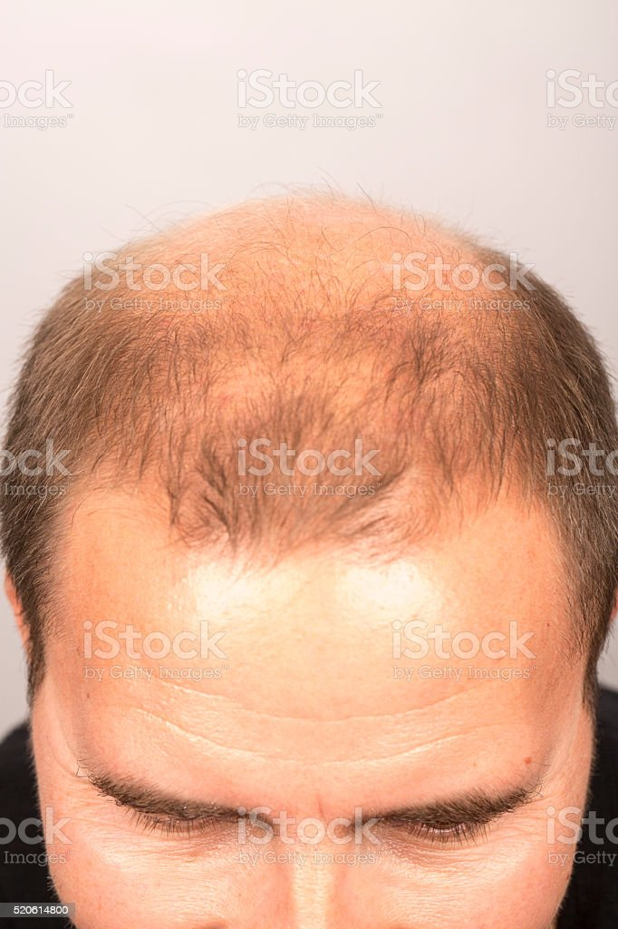 man controls hair loss stock photo
