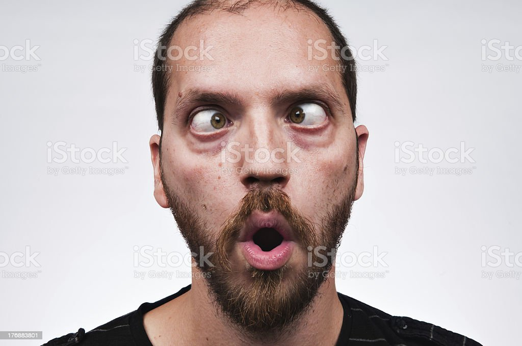 Man crossing eyes stock photo