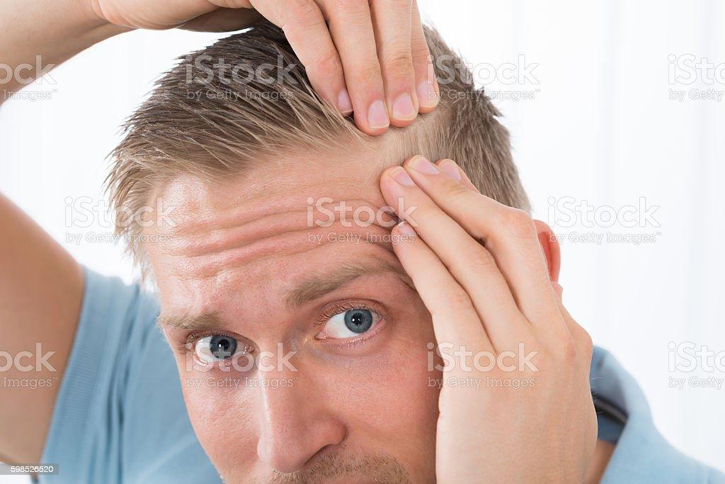 Man Examining His Hair stock photo