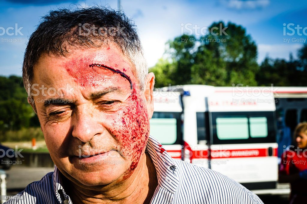 Man face after car accident stock photo