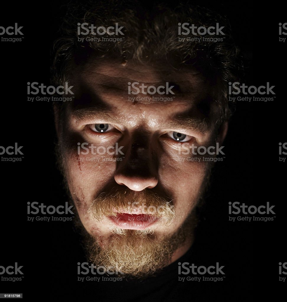 Man face with small sores royalty-free stock photo