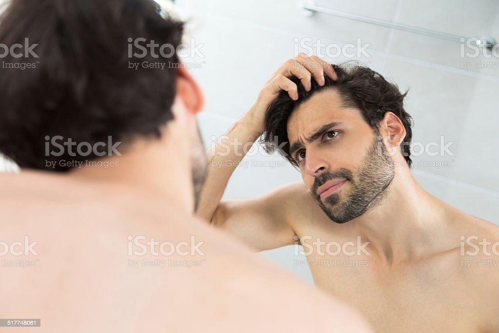 Man having hair loss problem stock photo