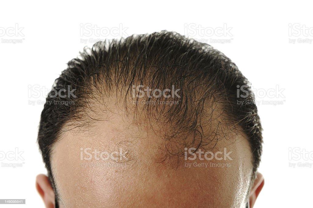 Man loosing hair, baldness stock photo