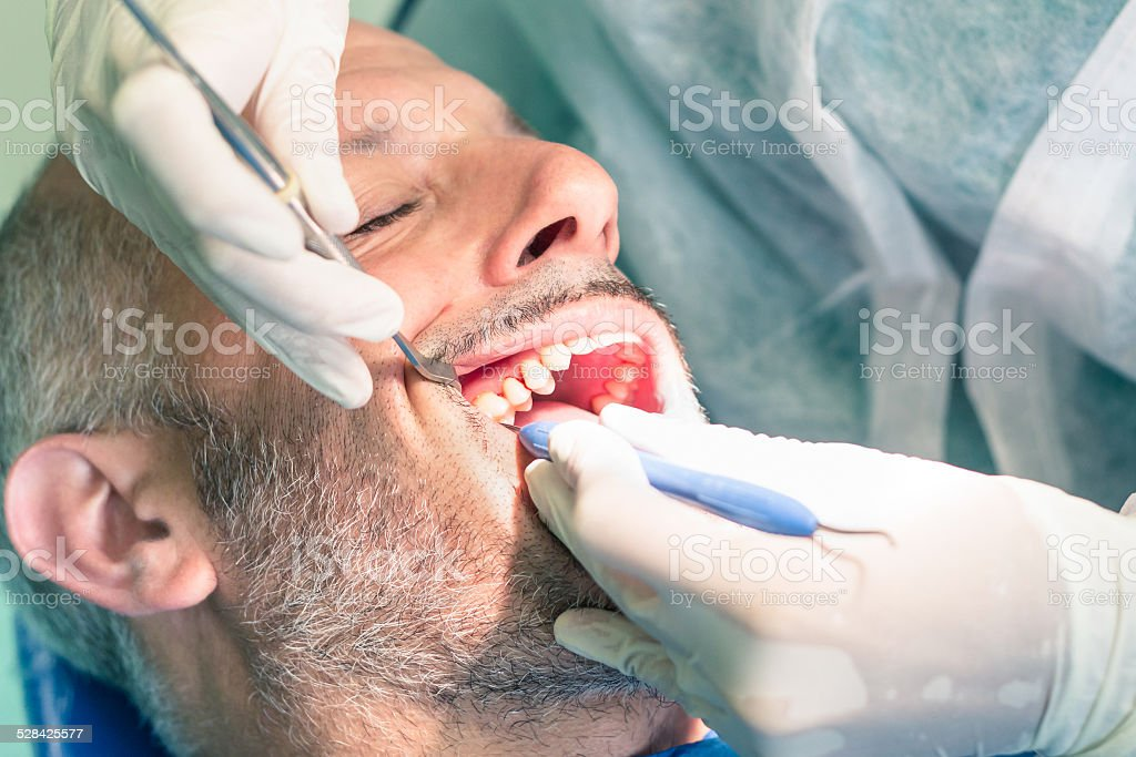 Man patient suffering during dental hygiene at dentist office stock photo