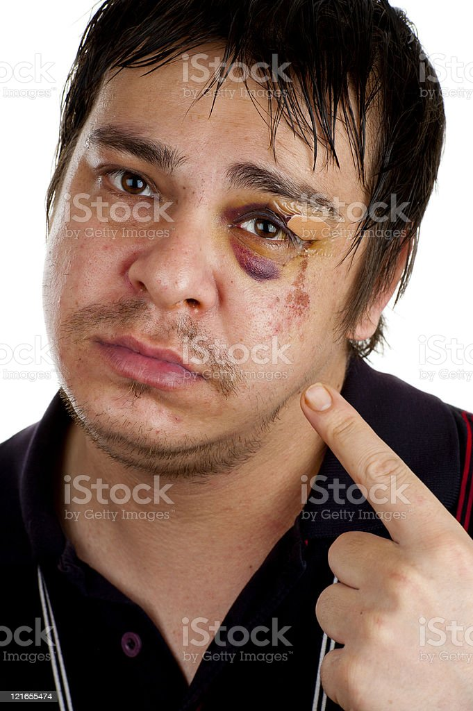 man pointing at his black eye stock photo