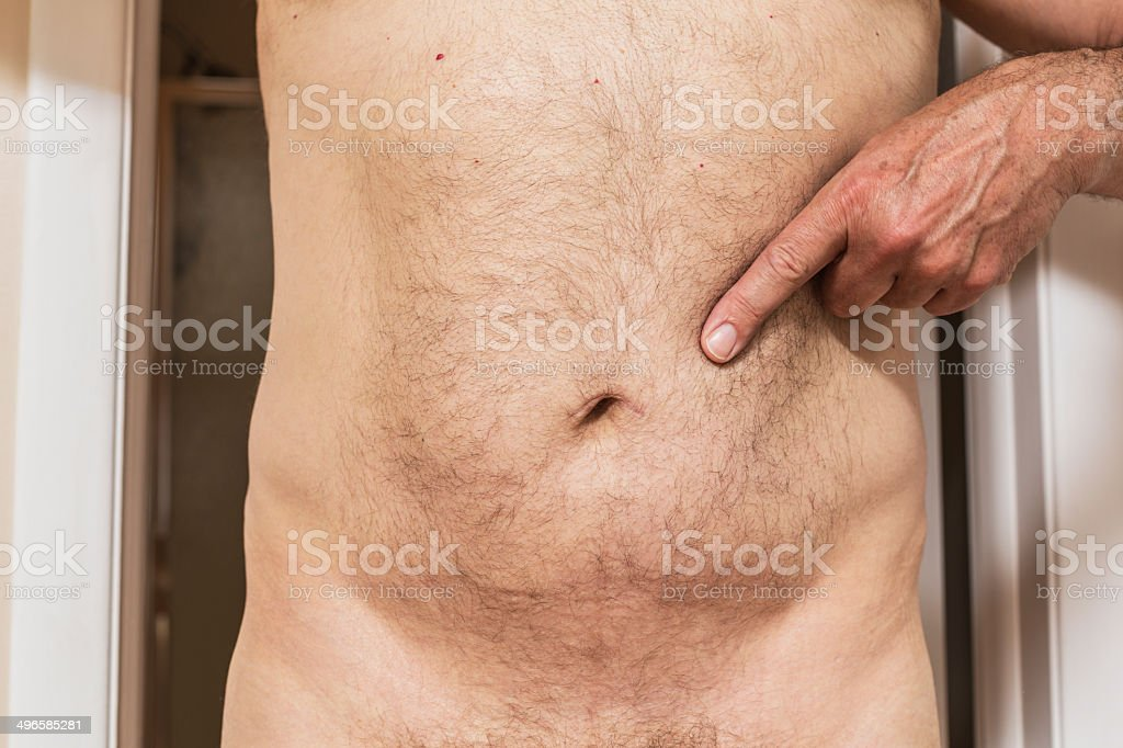Man Pointing To Umbilical Hernia Belly Button Scar stock photo