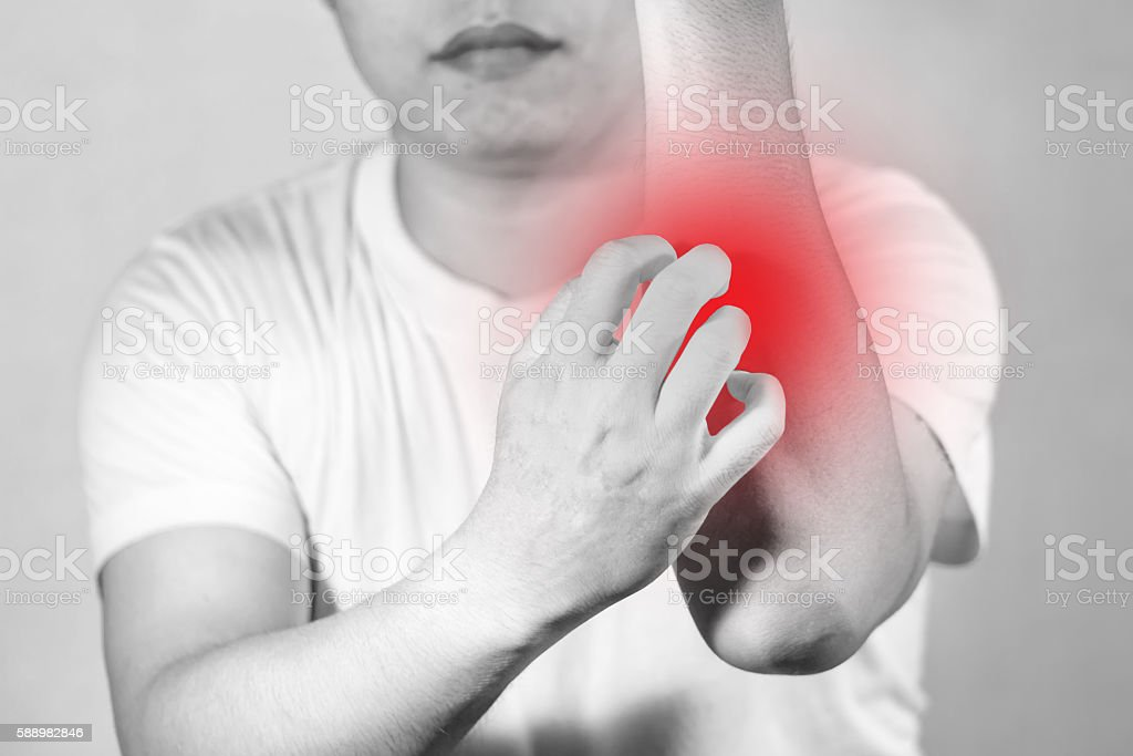 Man scratch hand and arm healthy concept stock photo