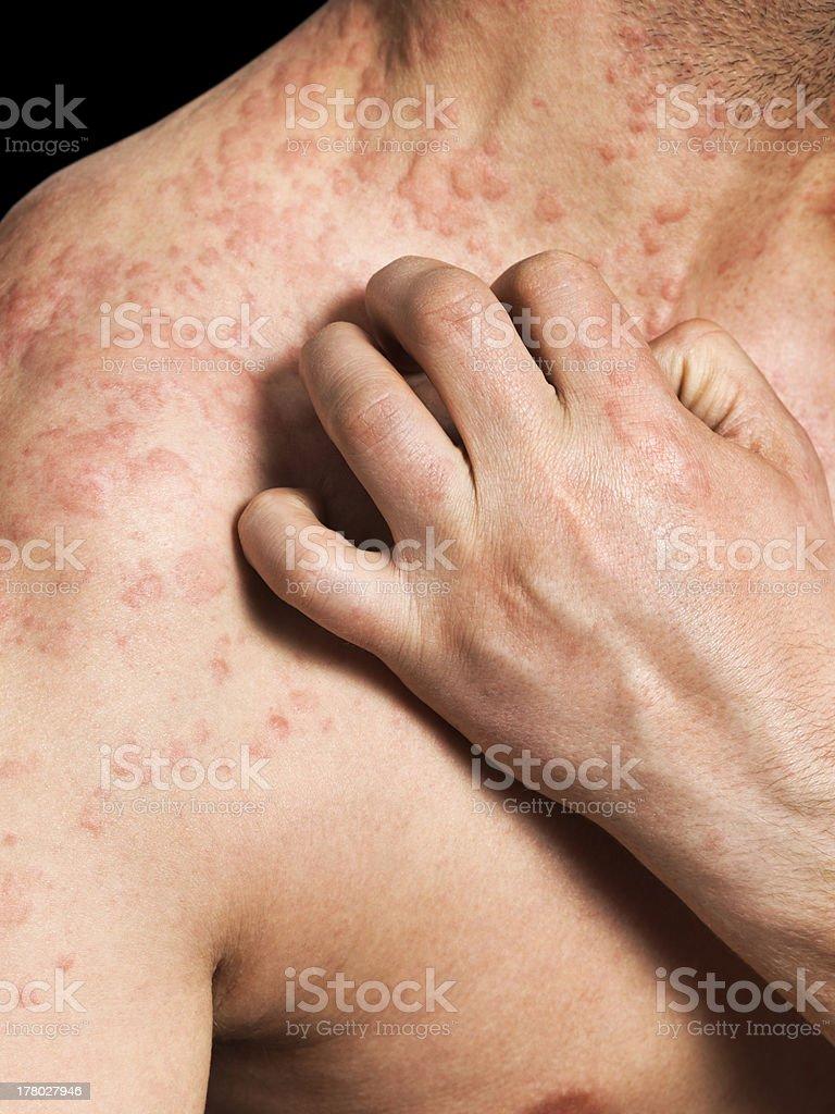 Man Scratching Allergic Skin stock photo