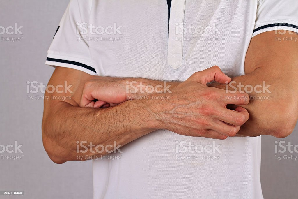 Man Scratching an itch. Skin,Allergic Reaction, Irritation stock photo