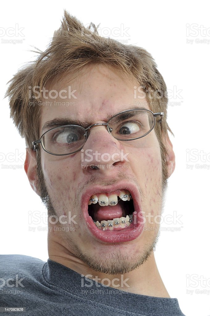 Man smiling showing his braces royalty-free stock photo