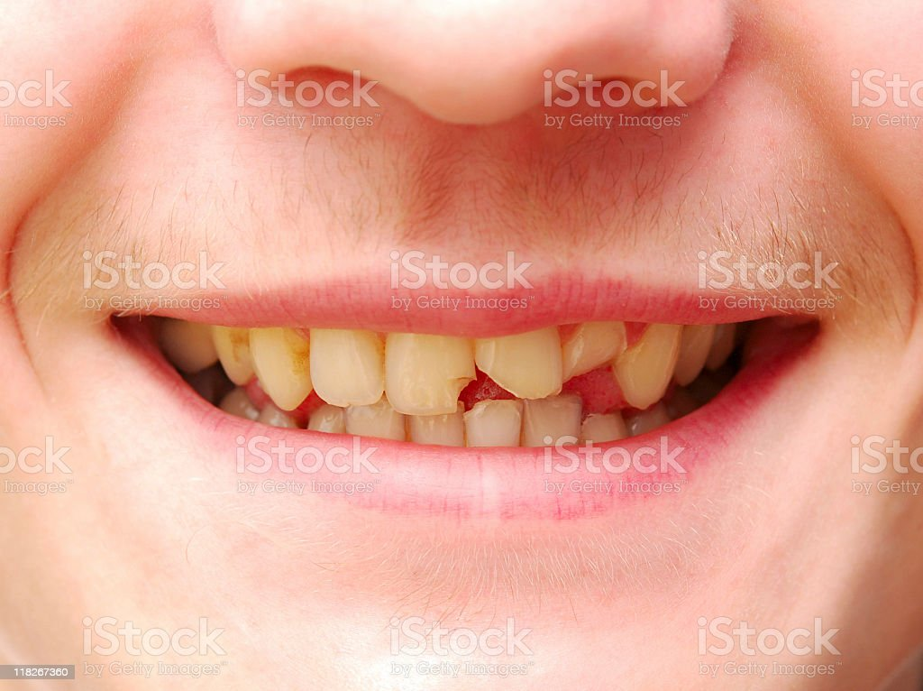 Man smiling with broken front tooth stock photo
