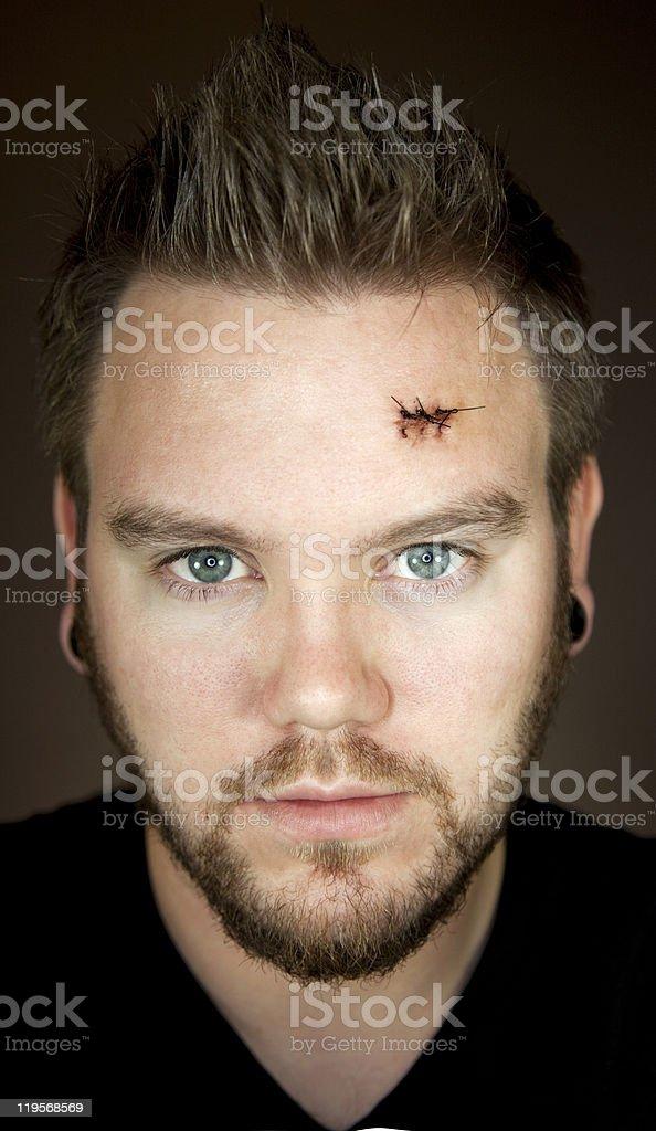 Man stares at camera after surgery stock photo