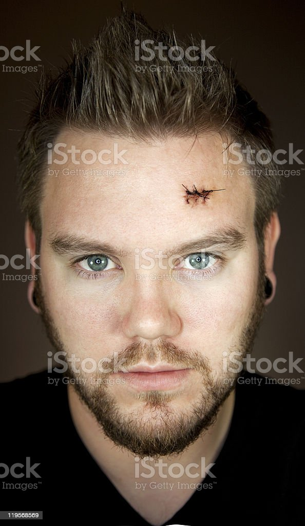 Man stares at camera after surgery stock photo