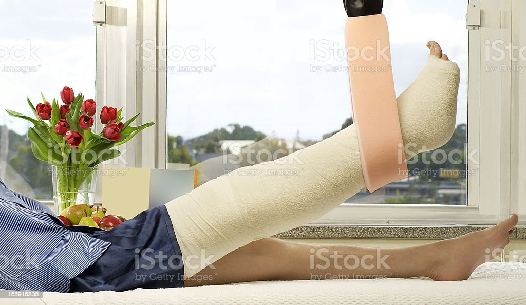Man with a broken leg laying in a hospital room stock photo