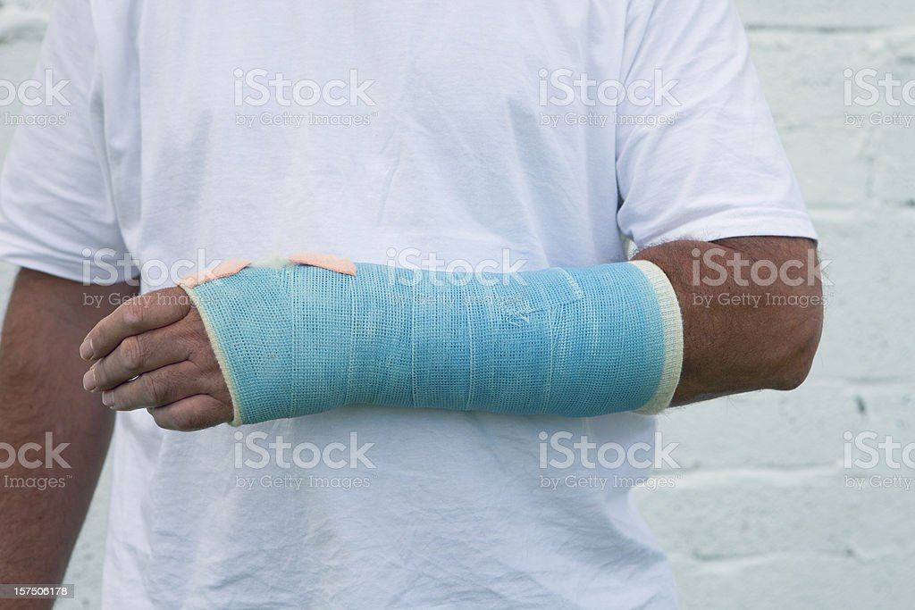 Man With A Broken Wrist stock photo