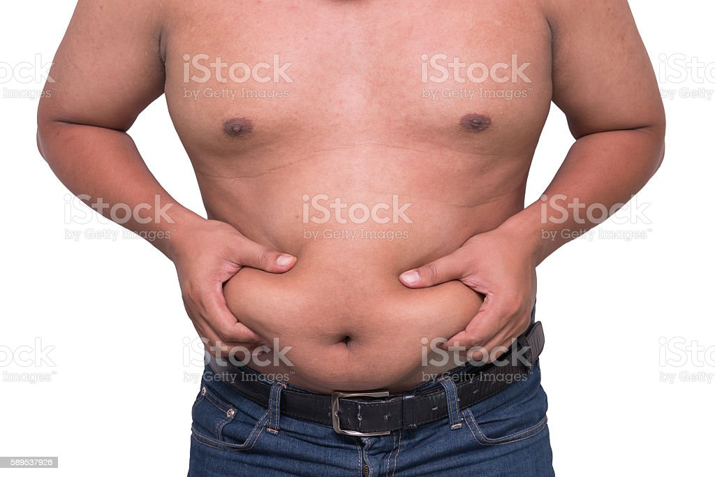 man with a cellulitis on a stomach. stock photo