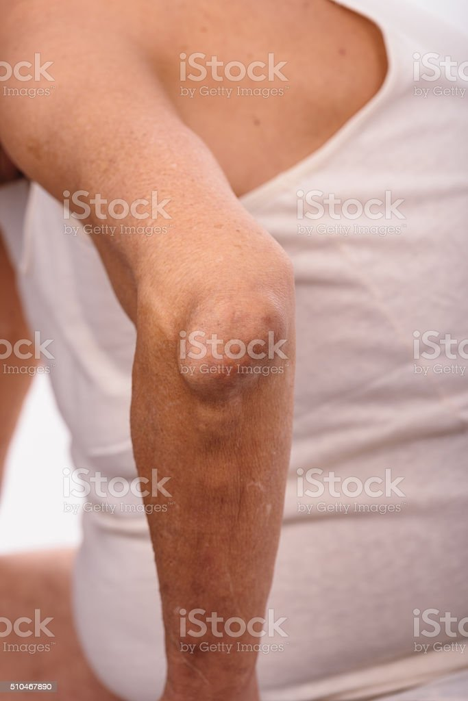 Man with a diagnosis of polyarthritis . stock photo