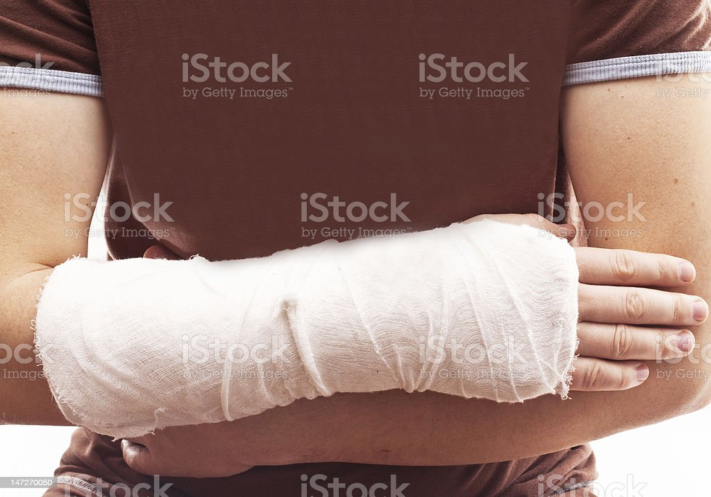 Man with a plastered arm royalty-free stock photo