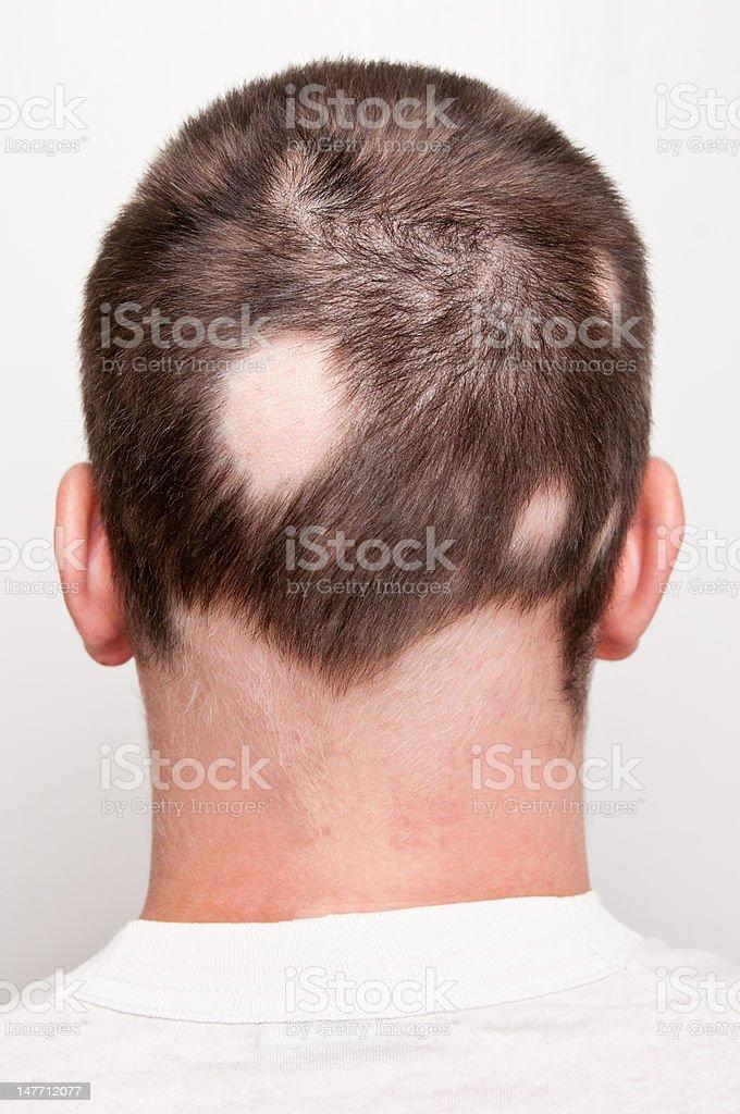 Man with Alopecia stock photo