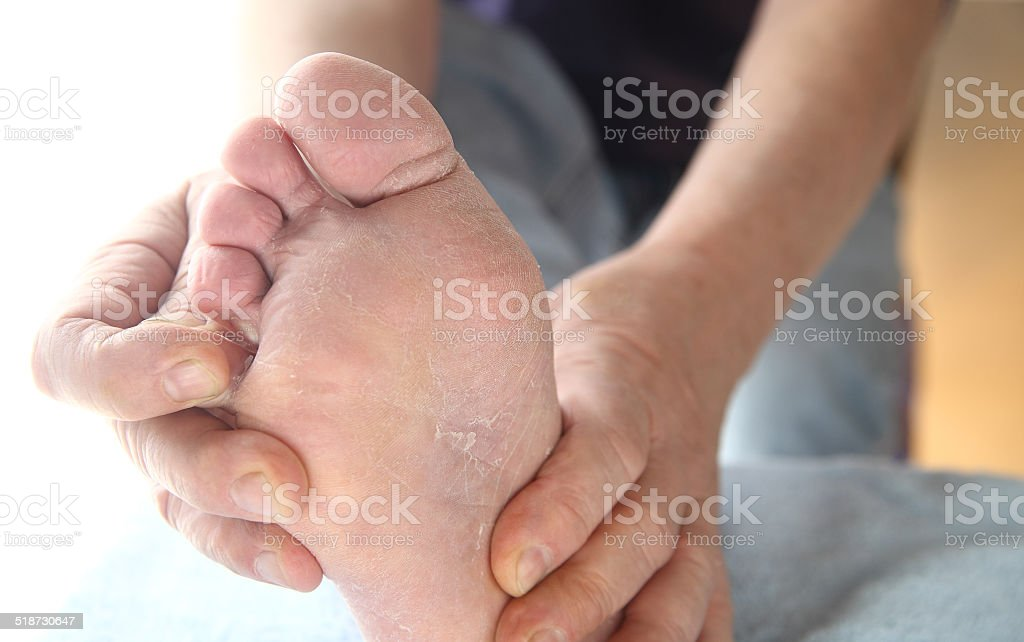 Man with athletes foot itchy skin stock photo