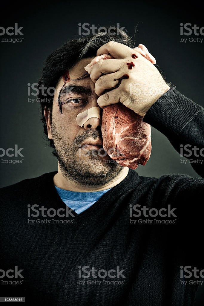 Man With Black Eye stock photo