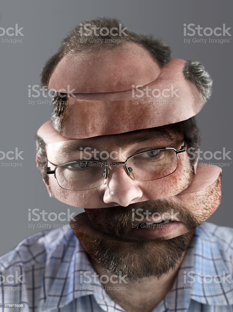 Man with Headache stock photo