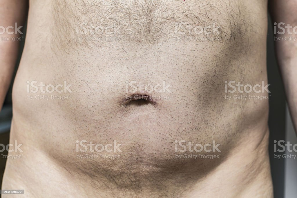 Man With Healing Belly Button Scar stock photo