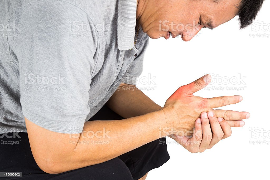 Man with painful and inflamed gout on his hand stock photo