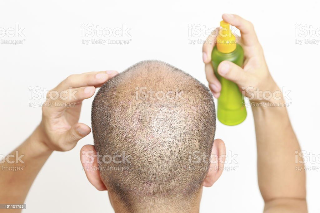 Man with short hair spraying something on his head  stock photo