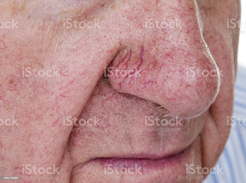 Man with spider veins on his nose stock photo