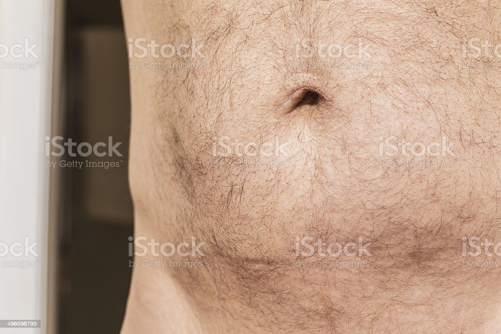 how to get rid of hair around your belly button