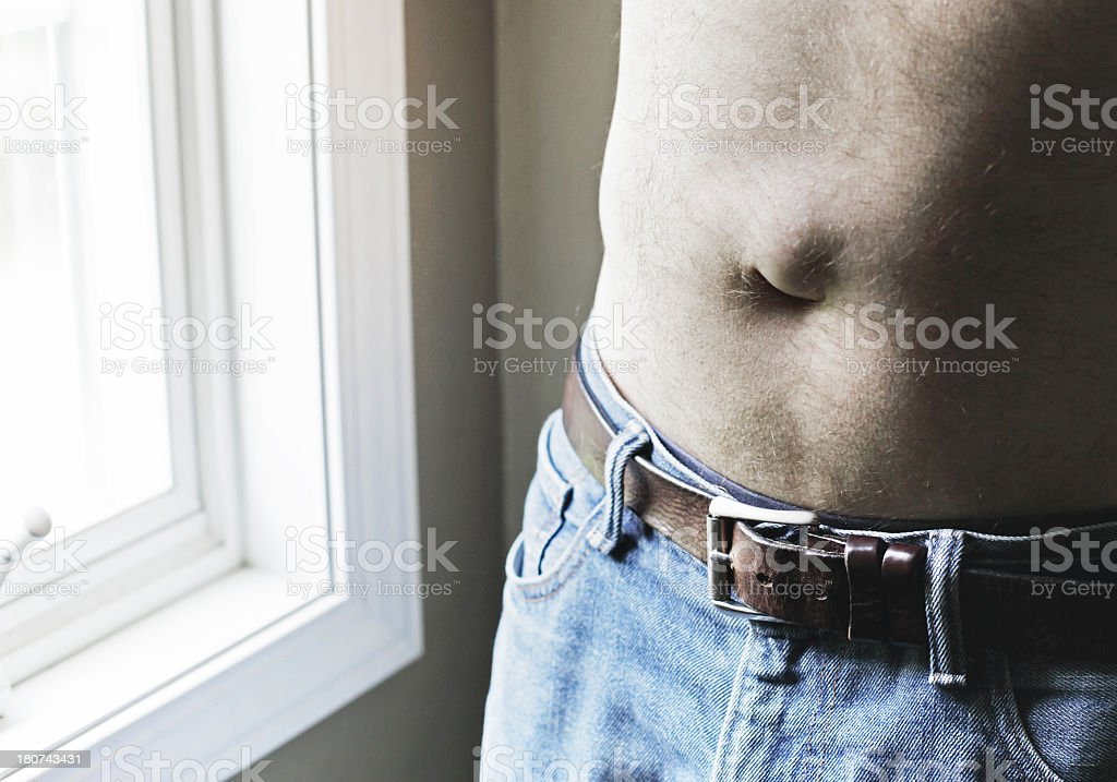 Man With Umbilical Hernia royalty-free stock photo