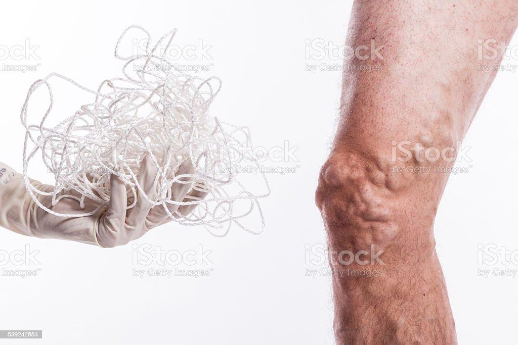 man with varicose veins stock photo