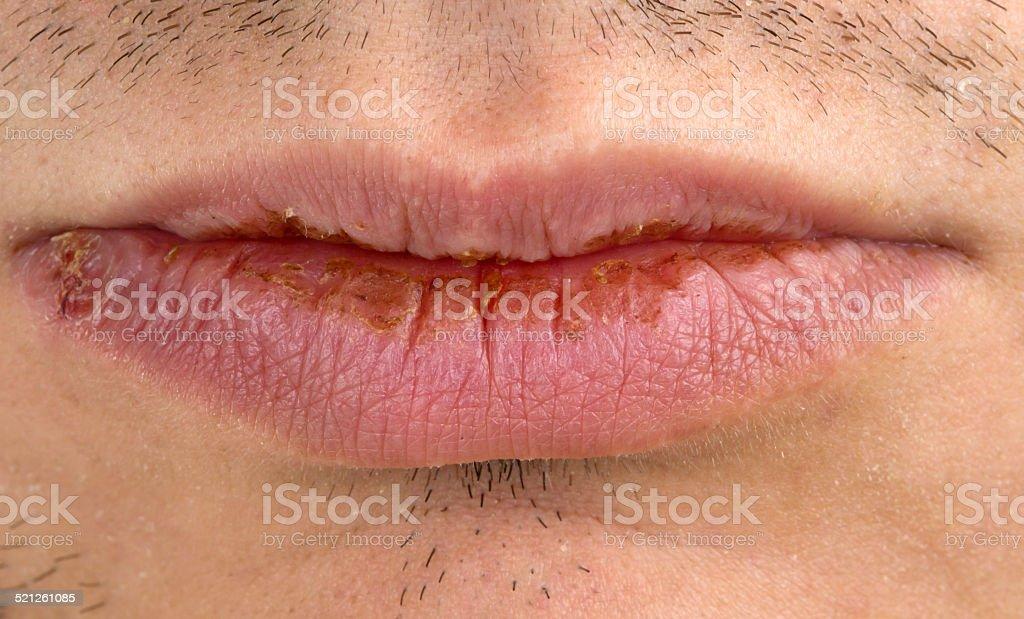 Manifestation of herpes stock photo