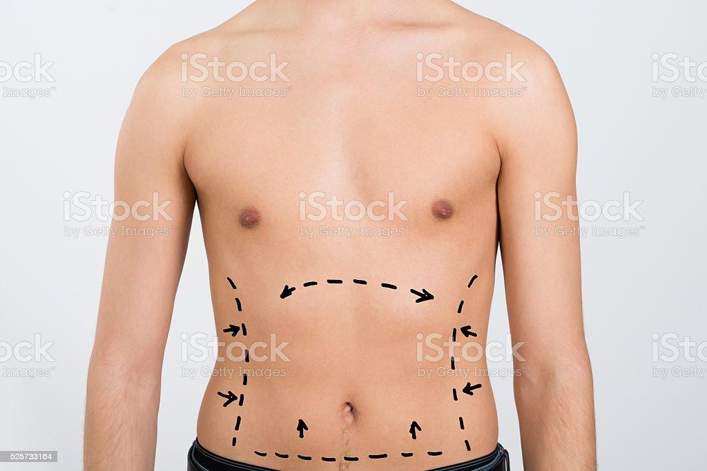 Man's Abdomen With Correction Lines stock photo