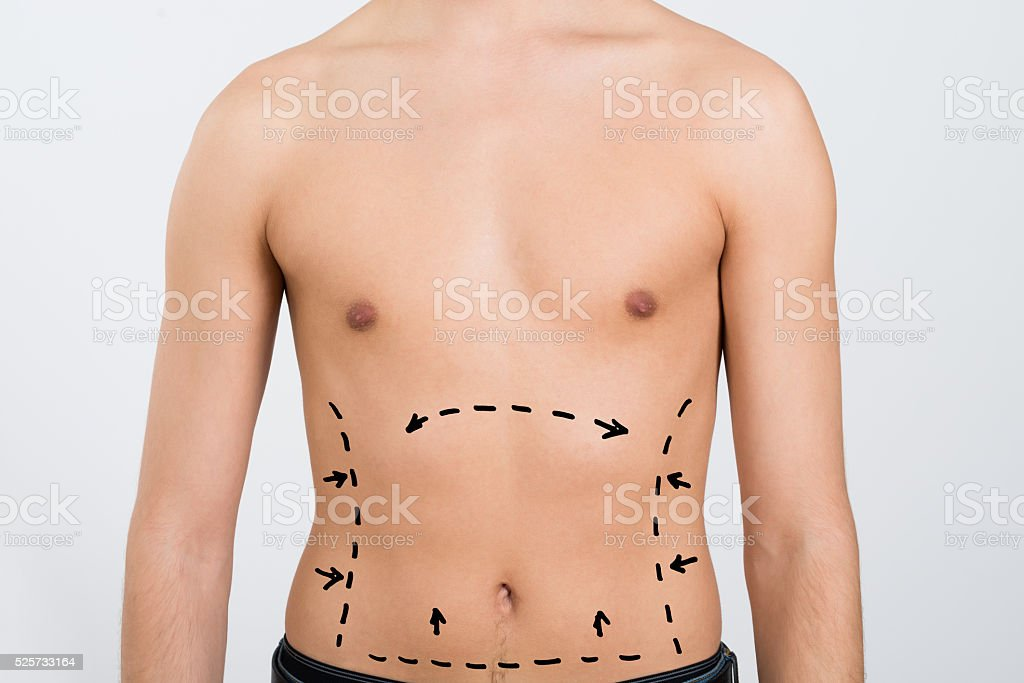 Man's Abdomen With Correction Lines stock photo